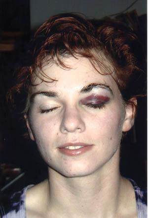 Anne with a black eye