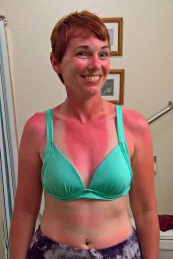 sunburned Anne